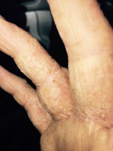 My Recovery Timeline Through Eczema and TSW | myHealthTorch