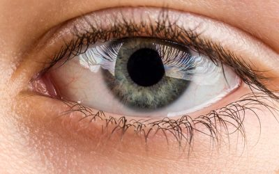 Using Steroid Creams on My Hands Affected the Health of My Eyes